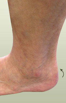 Achilles Spur After Surgery - University Foot and Ankle Institute