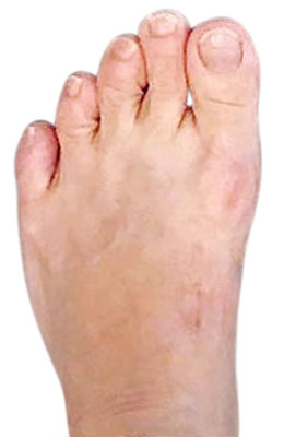 Bunion Revision Surgery, Failed Bunion Surgery, University Foot and Ankle Institute, Bunion Surgeon Los Angeles