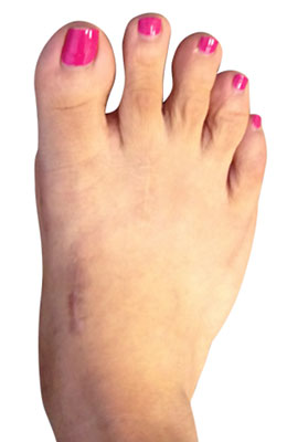 Lapidus Bunion Surgery, Hammertoe Surgery, Tailors Bunionectomy after image