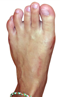 Lapidus Forever Bunionectomy, UFAI, Before and after Bunion Surgery Pictures, Dr. Baravarian