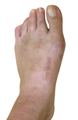 Lapidus Bunionectomy Hammertoe Correction Before Image University Foot and Ankle Institute