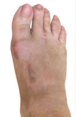 Lapidus Bunionectomy, Tailor's Bunion, Neuroma, After Picture, University Foot and Ankle Institute