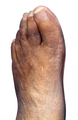 Severe bunion and hammertoe and tailors bunion after image, university foot and ankle institute