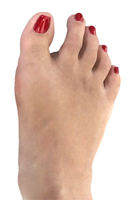 Bunion and Tailors Bunion, After mage, University Foot and Ankle Institute