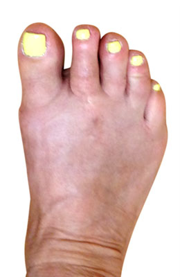 Osteotomy Bunionectomy, Hammertoe and Plantar Plate Repair,  after images