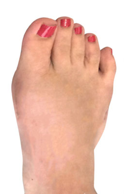 Lapidus Bunion Surgery after Image