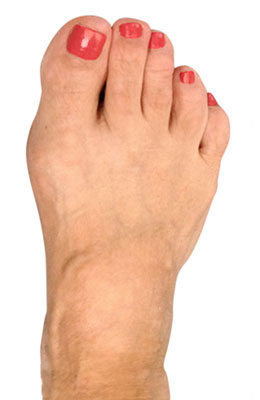 Osteotomy Bunion Surgery, University Foot and Ankle Institute, After Picture