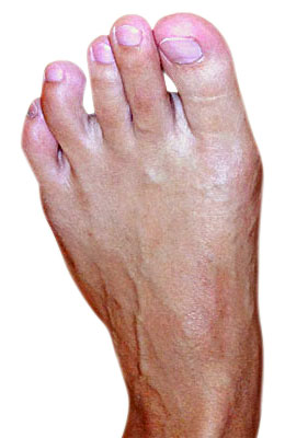 Bunion Osteotomy Surgery After Picture  - University Foot and Ankle Institute