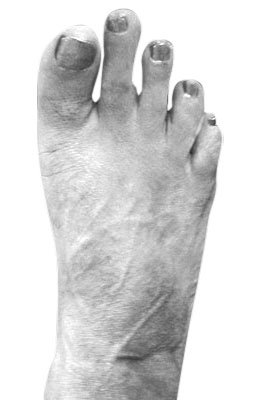 Bunion After Surgery - University Foot and Ankle Institute, Osteotomy Bunionectomy