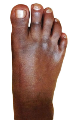Lapidus Bunionectomy, Hammertoe Correction, Osteotomy Tailors Bunion Surgery After Picture