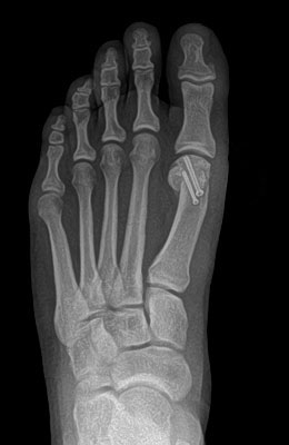 Bunion After Surgery Picture - University Foot and Ankle Institute
