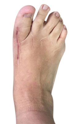 Revision Hallux Varus After Picture, University Foot and Ankle Institute