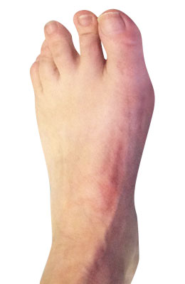 Bunion Surgery After Picture, University Foot and Ankle Insitute, Lapidus Bunionecotmy Procedure