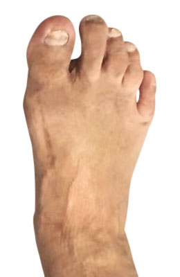 Bunion Surgery After Picture, UFAI, Lapidus Bunionectomy