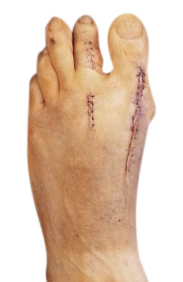 Bunion Revision Surgery After Picture, University Foot and Ankle Institute