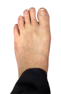 Osteotomy Bunion Surgery Six Weeks After