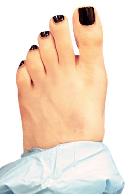 Bunion After Surgery - University Foot and Ankle Institute