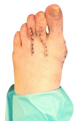 After picture: Osteotomy Bunionectomy, Hammertoe Correction Plantar Plate Repair