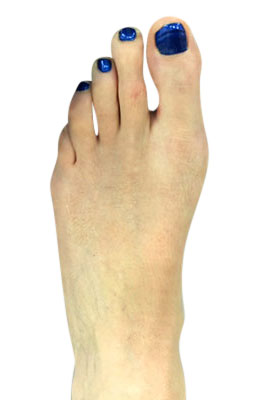 Bunion Correction Surgery - Osteotmoy Bunionectomy - After Picture