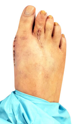 Bunion Correction and Hammertoe Surgery After Picture, University Foot And Ankle Surgery