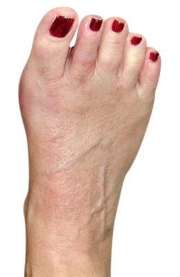 Bunion with Crossover After Surgery - University Foot and Ankle Institute