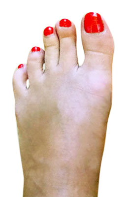 Bunion Correction with Lapidus Procedure After Picture, University Foot and Ankle Institue