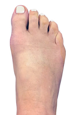 Hammertoe Correction with Bunion Correction After Surgery Picture
