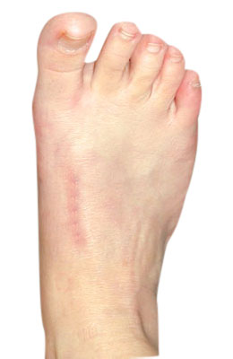 Bunion, Lapidus Bunionectomy After Surgery - University Foot and Ankle Institute