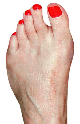 Bunion Osteotomy After Surgery - University Foot and Ankle Institute