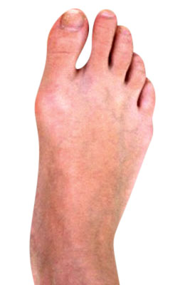 Osteotomy Bunion After Surgery - University Foot and Ankle Institute