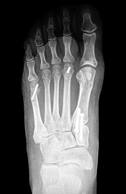 Lapidus Bunionectomy with Weil Procedure After Surgery - University Foot and Ankle Institute