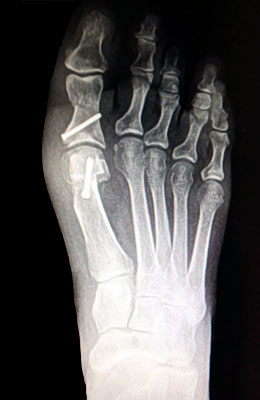 Austin Bunionectomy with Akin Procedure After Surgery - University Foot and Ankle Institute