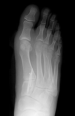 Bunion After Surgery, Lapidus Bunionectomy  - University Foot and Ankle Institute