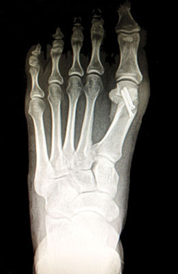 Small Bunion After Surgery - University Foot and Ankle Institute