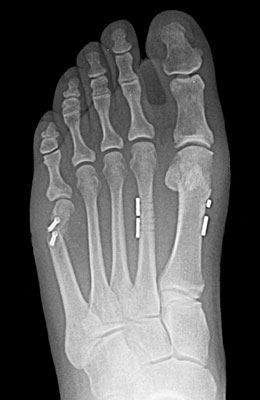 Tightrope Procedure and Osteotomy Tailors Bunion Surgery After Surgery - University Foot and Ankle I