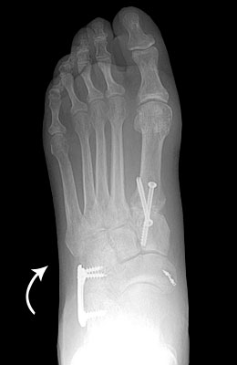 Flat Foot After Surgery - University Foot and Ankle Institute