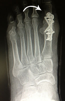 Big toe arthritis surgery after picture