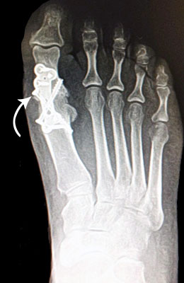 Fusion After Surgery - University Foot and Ankle Institute