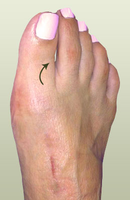 Hammertoe After Surgery - University Foot and Ankle Institute