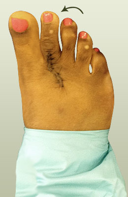 Plantar Plate Surgery After Picture, University Foot and Ankle Institute