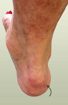 Achilles Spur Befor Surgery - University Foot and Ankle Institute