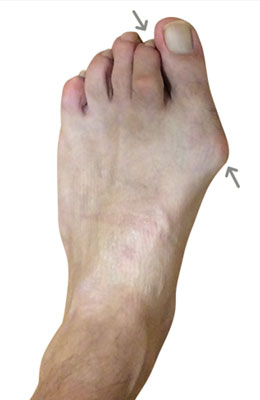 Lapidus Bunionectomy Hammertoe Correction After Image University Foot and Ankle Institute