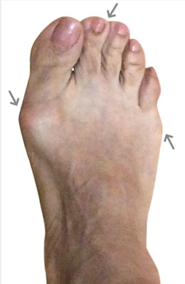 Lapidus Bunionectomy, Tailor's Bunion, Neuroma, Before Picture, University Foot and Ankle Institute