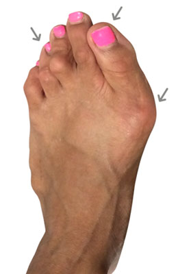Failed bunion revision surgery before picture, University Foot and Ankle Institute
