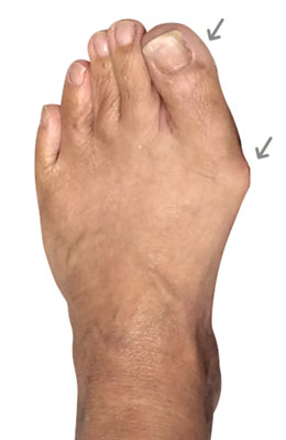 Minvasive Bunionectomy and hammertoe correction, University Foot and Ankle Institute