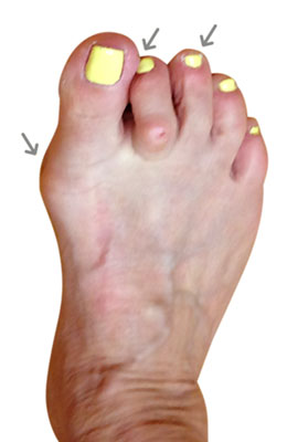 Osteotomy Bunionectomy, Hammertoe and Plantar Plate Repair, before and after images