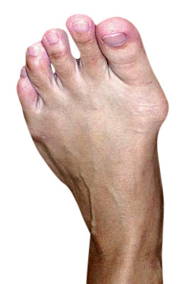 Bunion Osteotomy Surgery Before Picture - University Foot and Ankle Institute