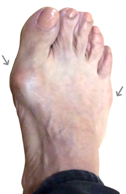 Lapidus Bunionectomy and Neuroma Removal Before and After Picture, UFAI