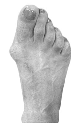 Bunion Before Surgery - University Foot and Ankle Institute, Osteotomy Bunionectomy