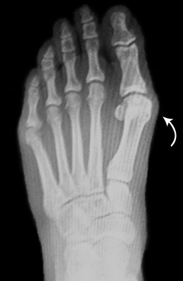 Bunion Before Surgery Picture - University Foot and Ankle Institute